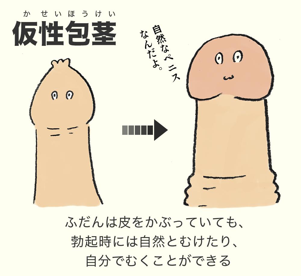 仮性包茎は、普段は皮をかぶっていても、むこうとおもえば剥けるもの