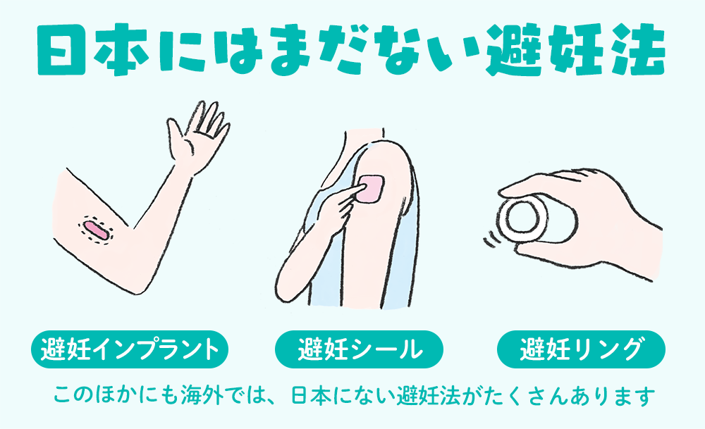 日本にはまだない避妊法